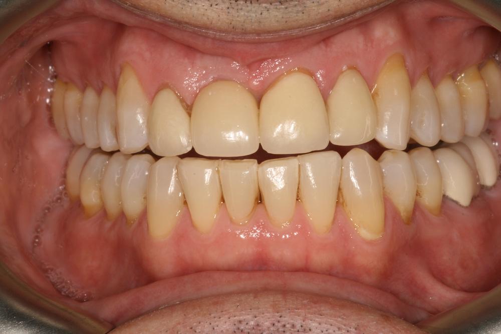 dental implants Greensboro