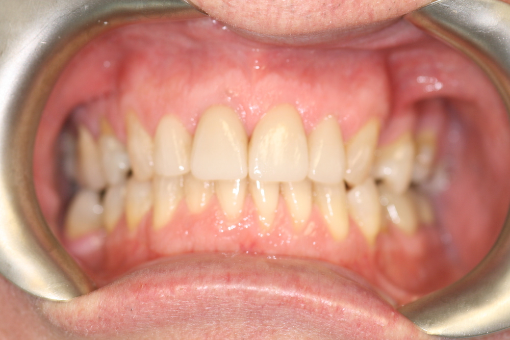 after shot of dental crowns in greensboro